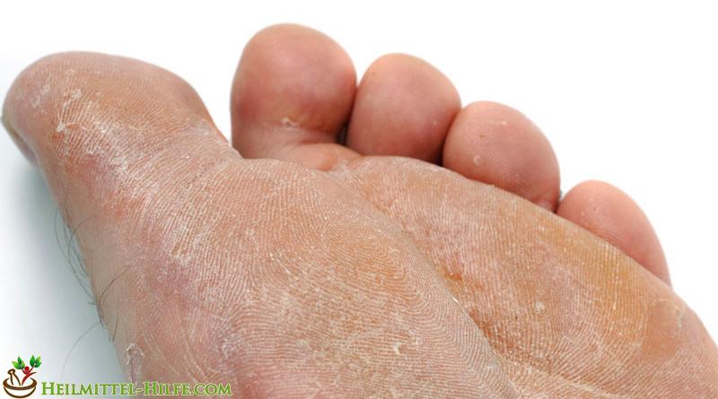 Heilmittel gegen Fußpilz