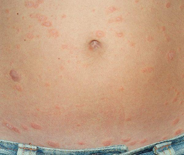 Schuppenflechten- psoriasis