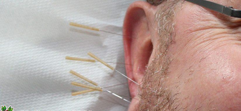 Akupunktur gegen Heuschnupfen