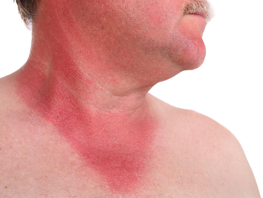 Heilmittel bei Sonnenbrand