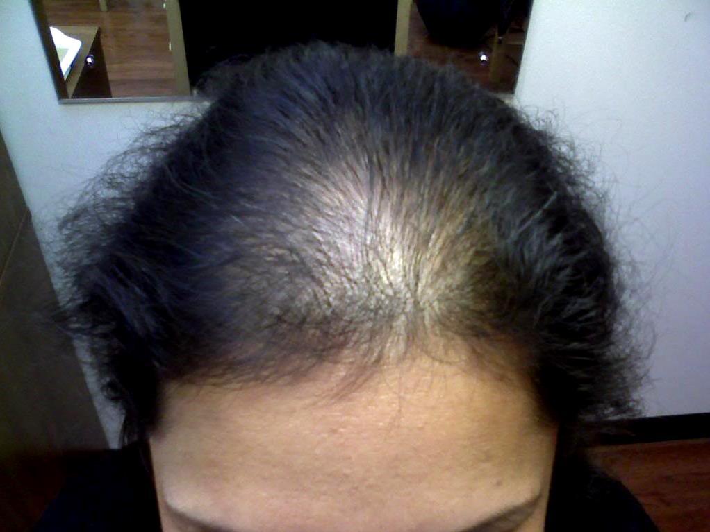 Heilmittel gegen Haarausfall - Schüsslersalze