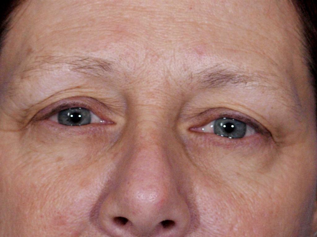 Hausmittel gegen Müde Augen