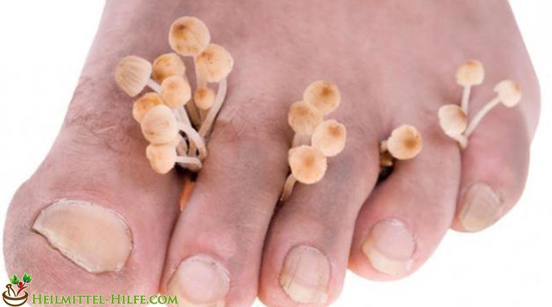 Hausmittel gegen Fußpilz